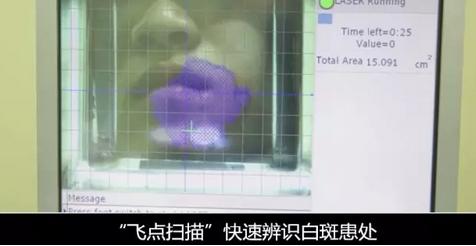 合肥华夏Fencer智能308准分子激光治疗